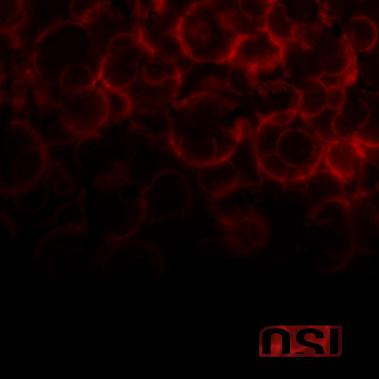 osi_bloodcover